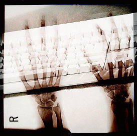 X ray photograph of person s hands on keyboard uid 1278716